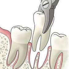 A Painless Root Canal Treatment – Does it Exist?