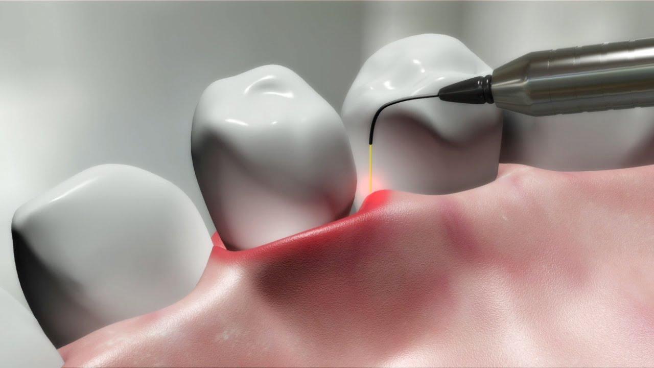 laser dentistry treatment