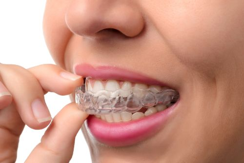 cosmetic dentist in India