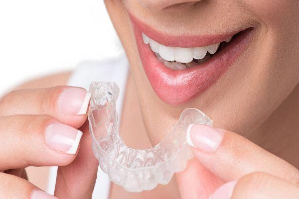Orthodontics in delhi