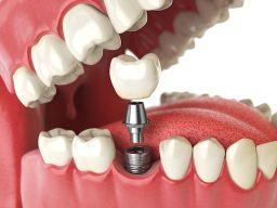 Dental implant in delhi