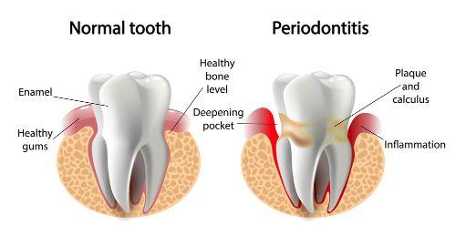 Periodontics in delhi