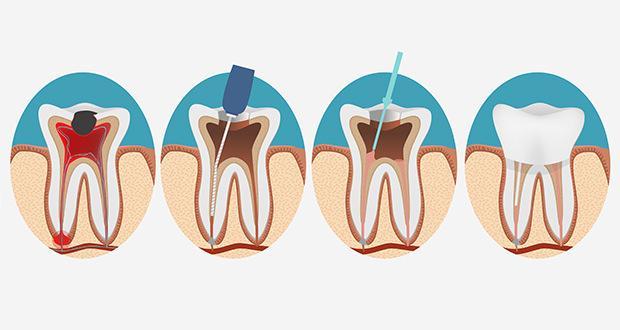 Root-Canal-cancer-causing-FI-min Endodontics in delhi paga