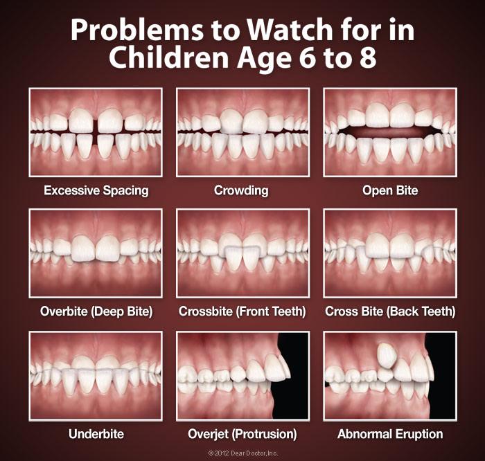 https://ptortho.com/tyfoon/site/fckeditor/orthodontic-problems.jpg