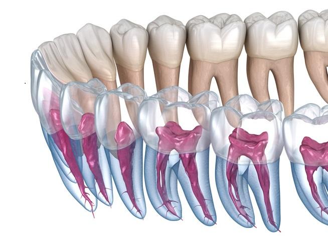 Go for an Endodontic Treatment to Keep Away Your Dental Ailment