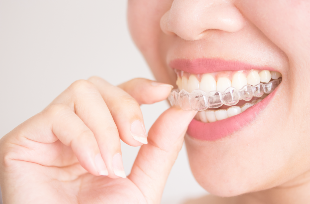 Clear Aligners – A Perfect Solution to Align Your Teeth