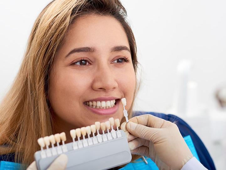 Dental Veneers – Type of Veneers With Procedure