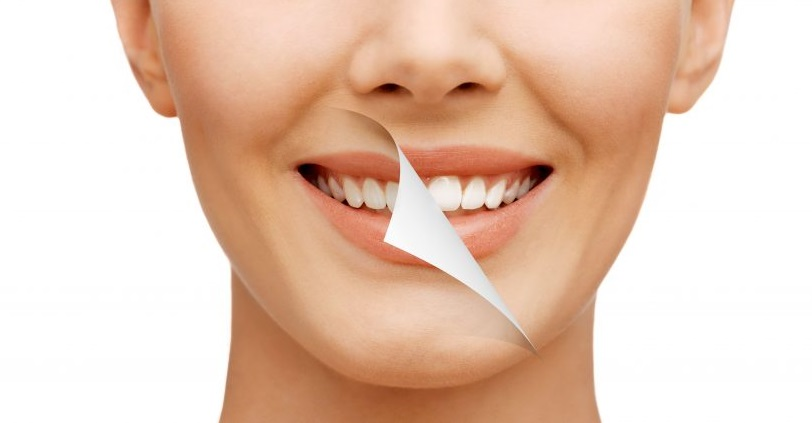 Improving Your Smile With Cosmetic Dental Veneers