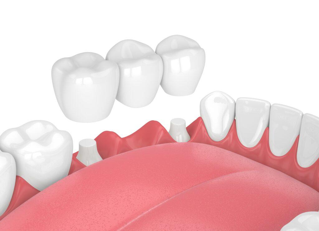 Dental Bridges – The Best Solution For Teeth Gap